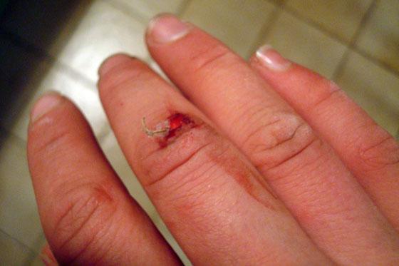 Skinned knuckle